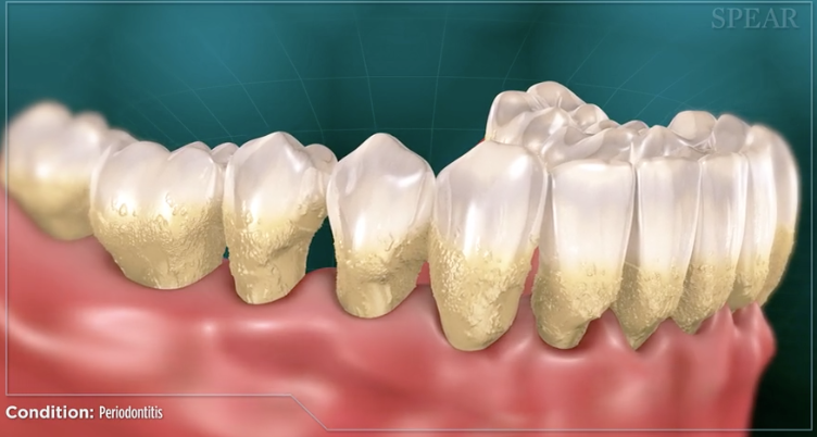 Dental Home Periodontal Disease