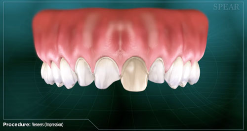 dental home veneers