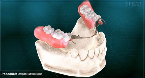 family dentistry Partial denture